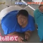 10歳で体重186kgの超巨漢な少年が日本で精密検査を受けた結果